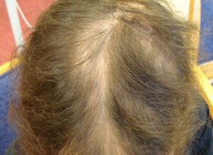 Childrens Hair Loss 1