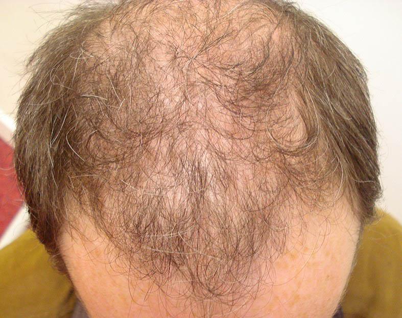 Male Hair Loss 1