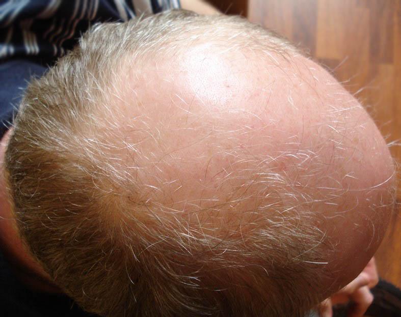 Male Hair Loss 2